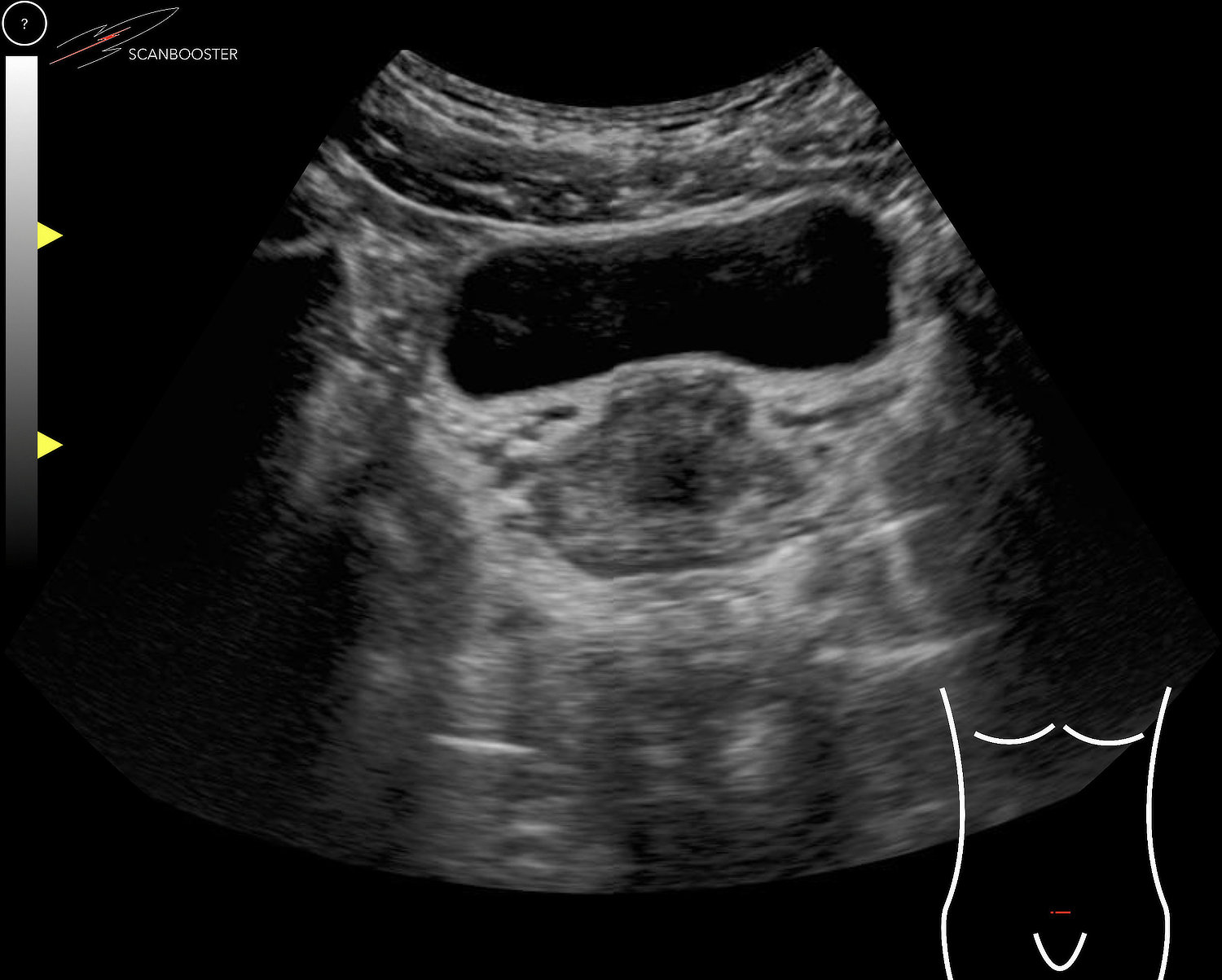 Physiologic Prostate Gland Ultrasound